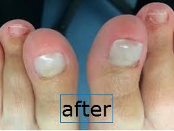 Nail Reconstruction Pic2